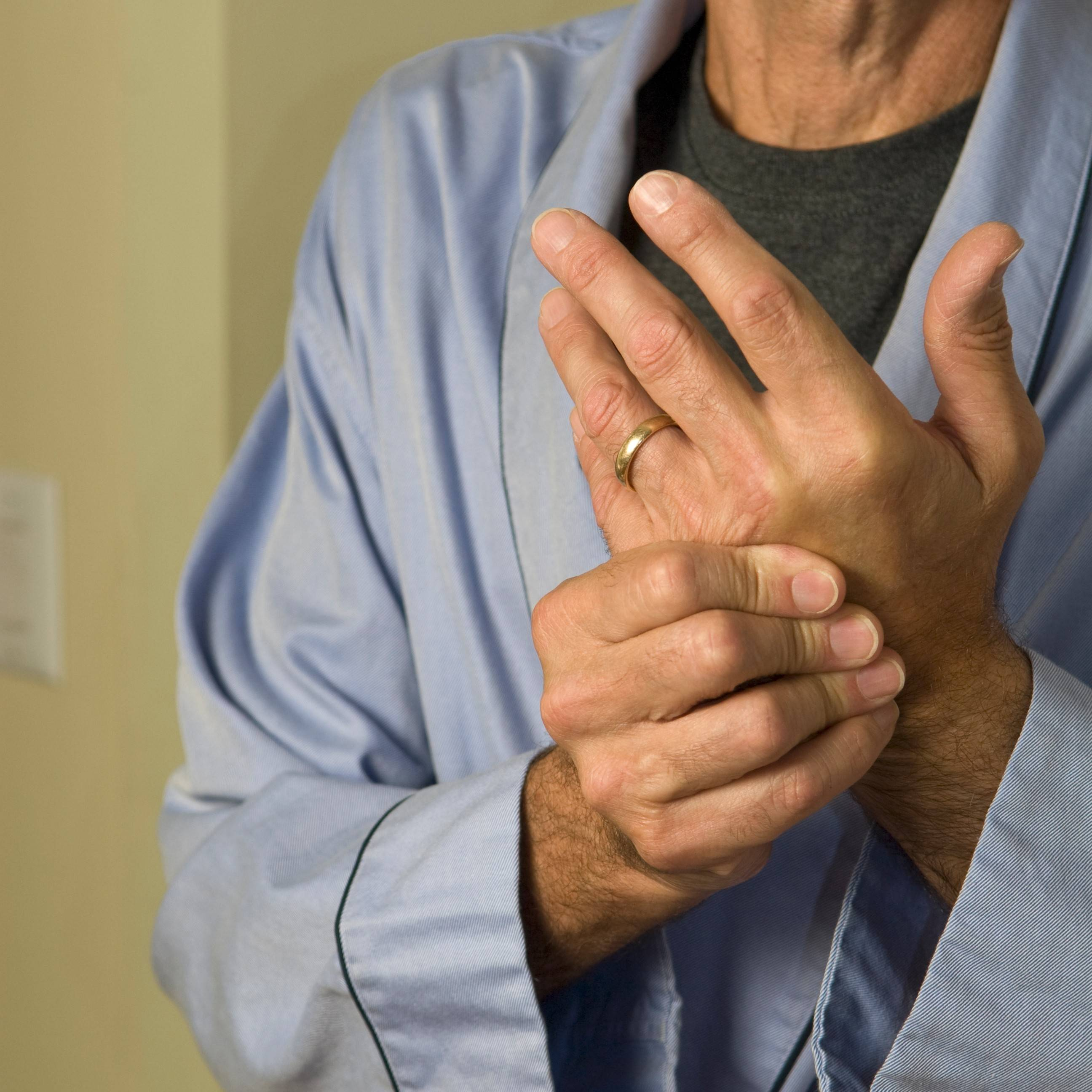 Rheumatoid arthritis is an autoimmune illness resulting in inflammation and destruction of the joints, most commonly the hands and wrists.