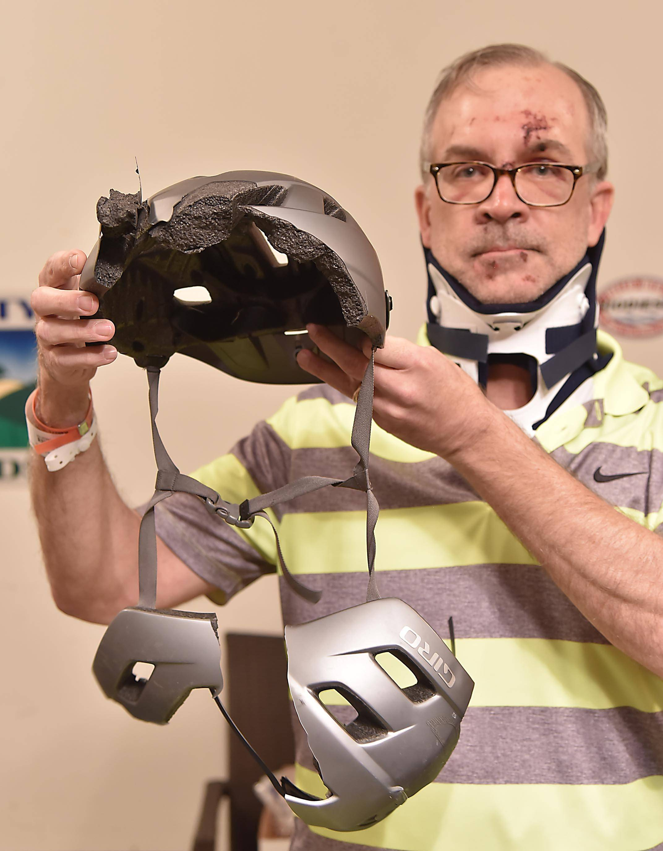 Kane County Transportation Director Carl Schoedel's helmet split into pieces when the bicycle he was riding was hit from behind by a passing car Tuesday. Despite the crash, Schoedel says he will continue to ride his bike.