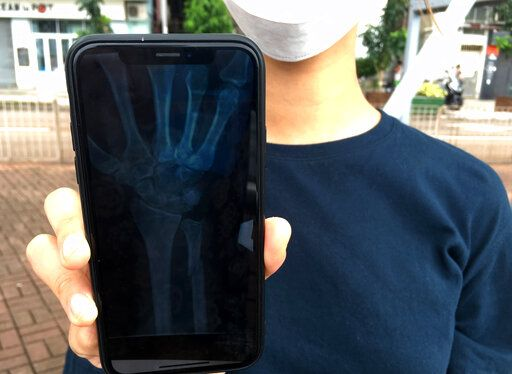 In this Oct. 7, 2019, photo, an organizer of an underground network of volunteer Hong Kong medics that are treating injured protesters shows an X-ray image on her mobile phone that revealed a fracture above the left wrist of a protester in Hong Kong. The 22-year-old protester, too scared to seek treatment in government hospitals, reached out to the network using an encrypted messaging app and said he'd been struck by a baton on his arm.